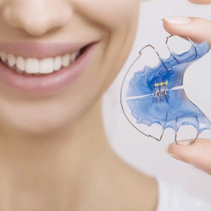 Orthodontic appliances and plates
